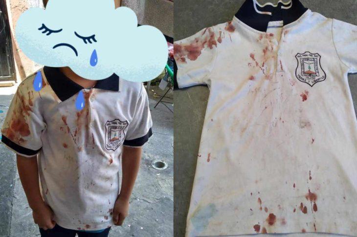 Niño de primaria en Morelos sufre bullying.