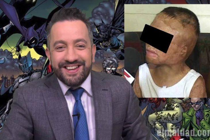 Chumel Torres se burla de niño quemado.